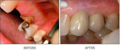 dental-implants-devon-1