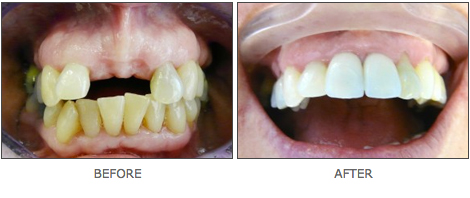 dental-implants-devon-2
