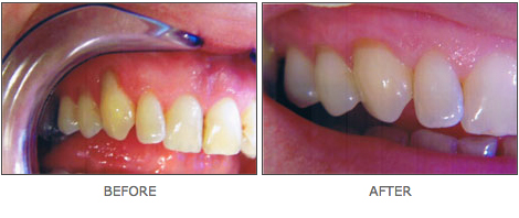 cosmetic-dentistry-3